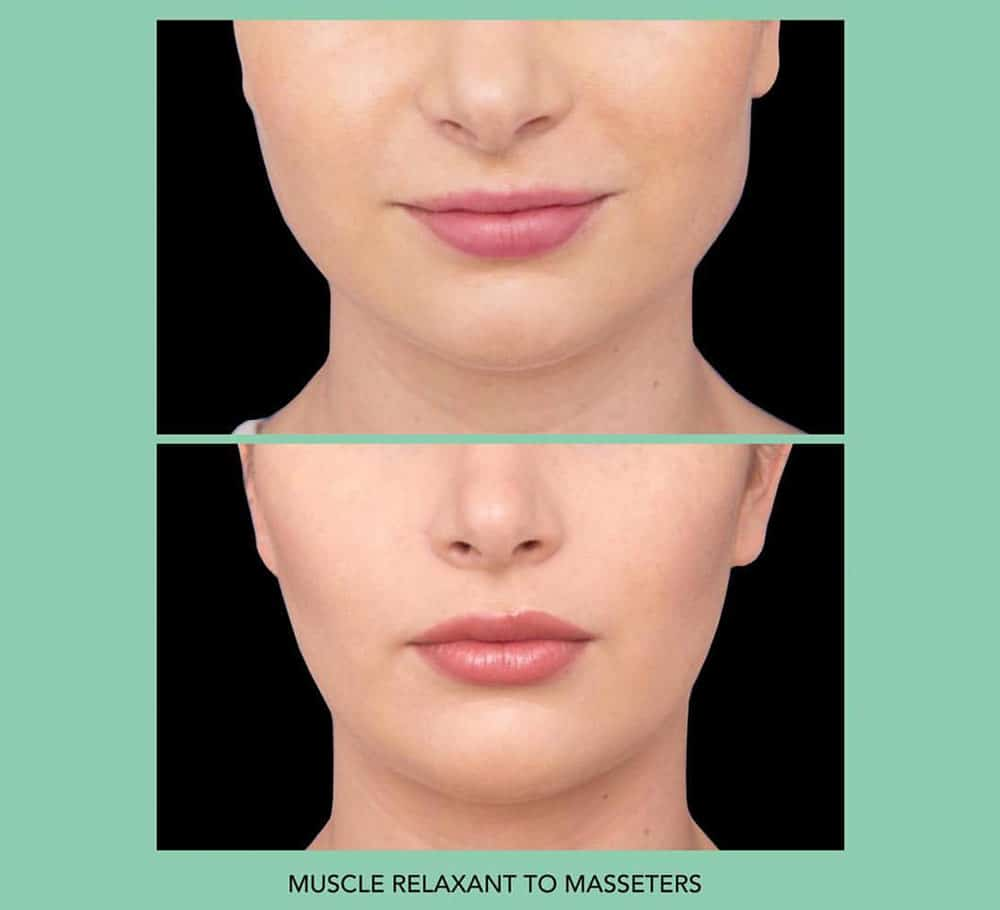 facial slimming injections sydney